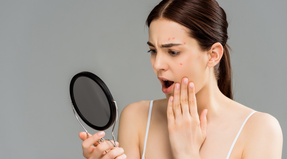 Acne Scarring Treatment: Effective Methods and Tips