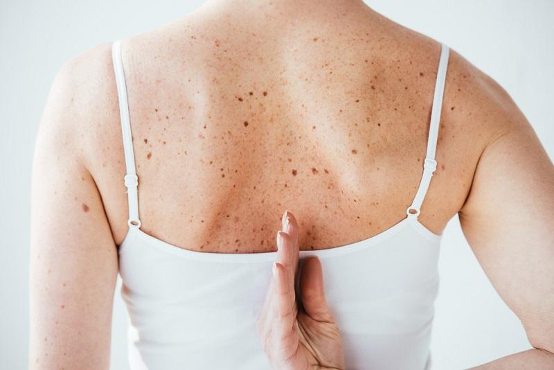Birthmarks on woman's back