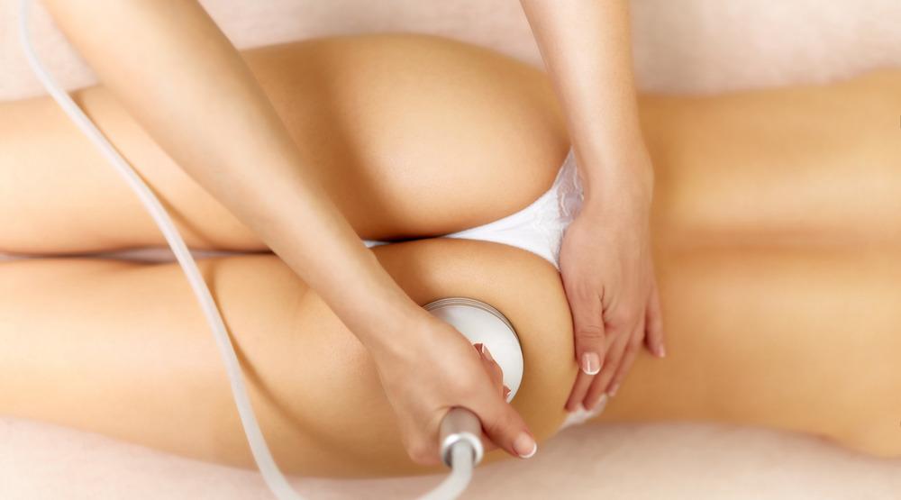 Ultrasound cavitation body contouring treatment.