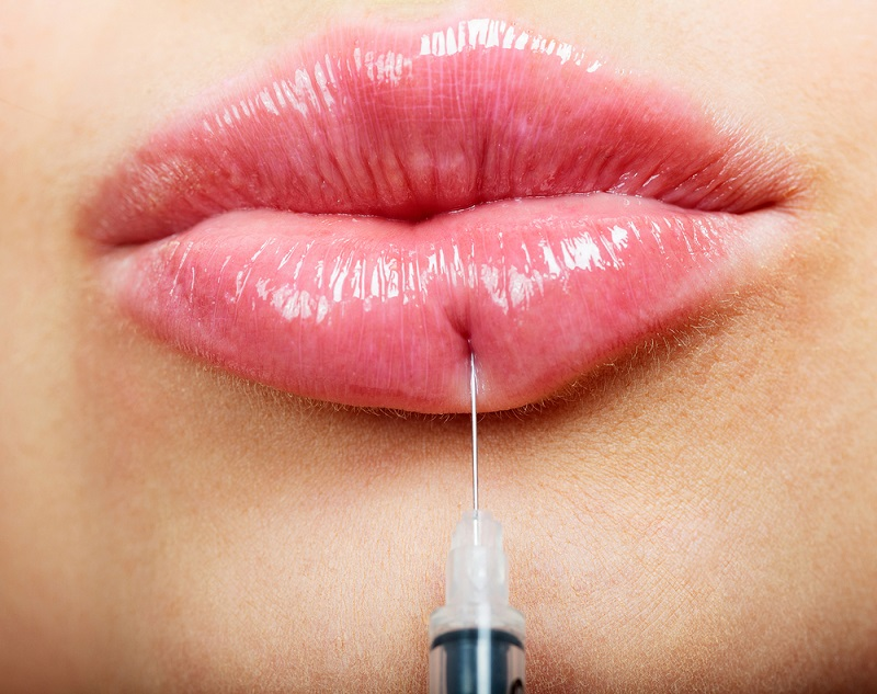 Closeup shot of beautiful female lips and syringe with filler