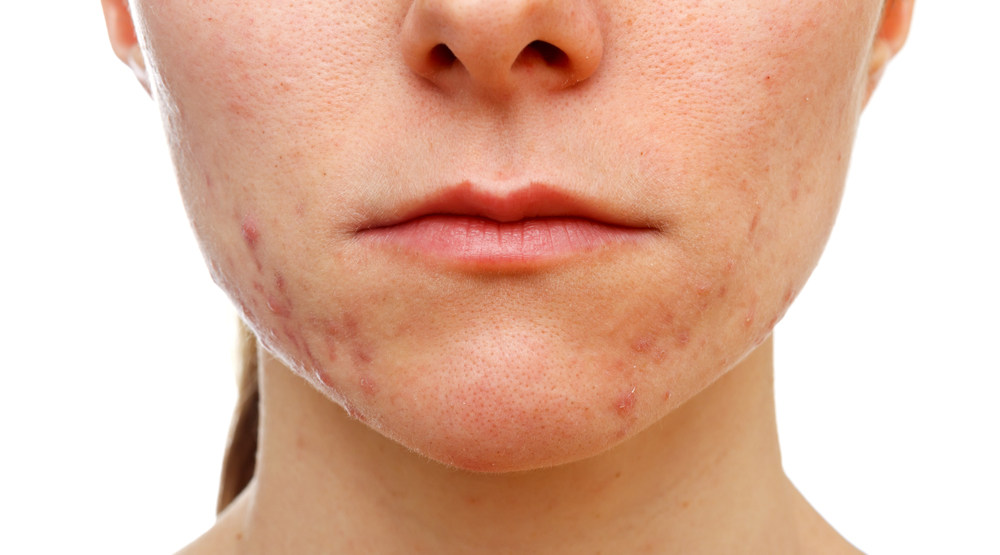 face with acne and acne scars