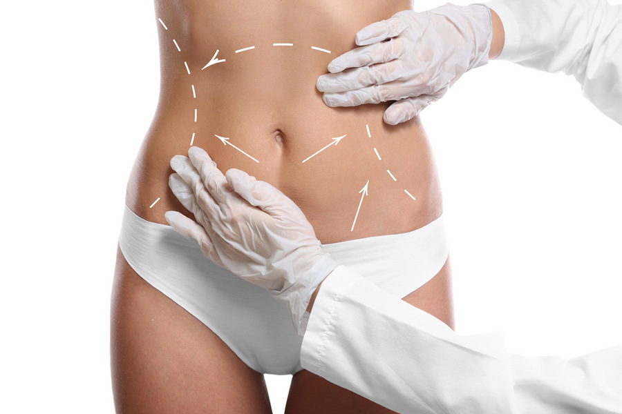 how does 3d liposuction work?