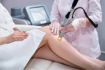 Difference betweeen laser hair removal and IPL