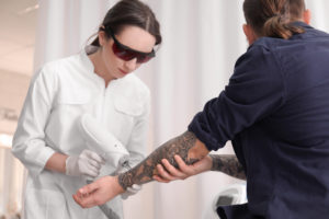 myth about tattoo removal