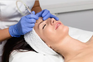 microdermabrasion for skin treatment in London