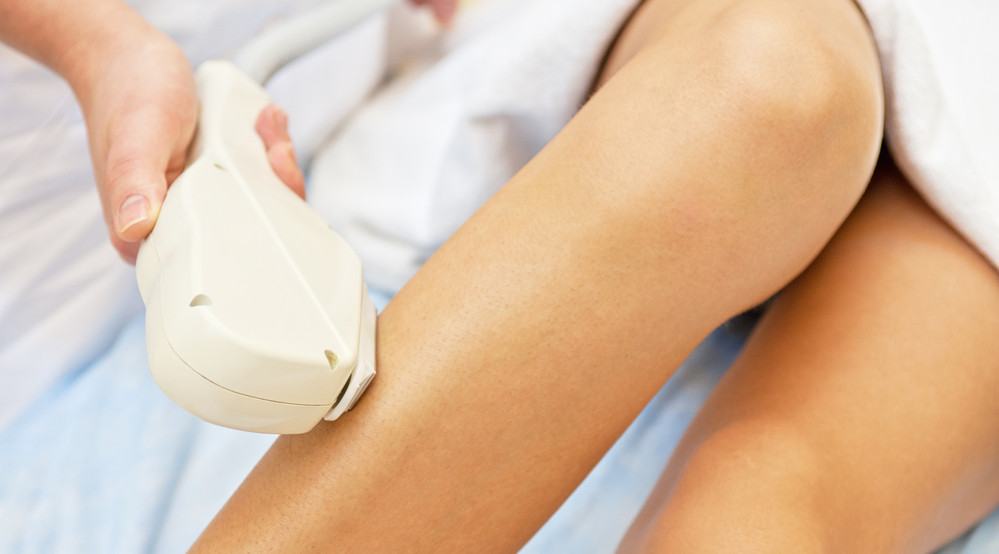 Preparation for laser hair removal is easier in the winter