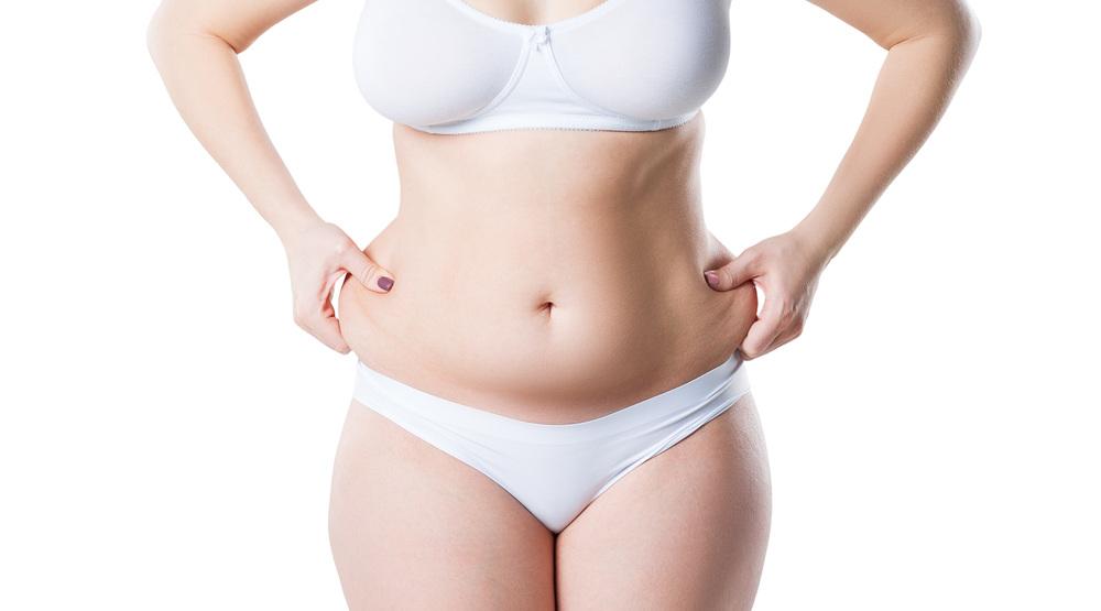 Laser skin tightening stomach