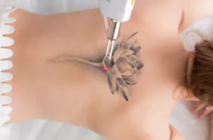 Tattoo removal in London
