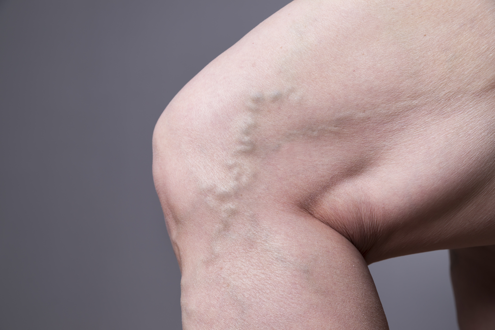 varicose veins in feet