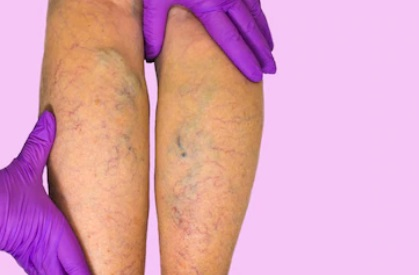 varicose veins treatment in London