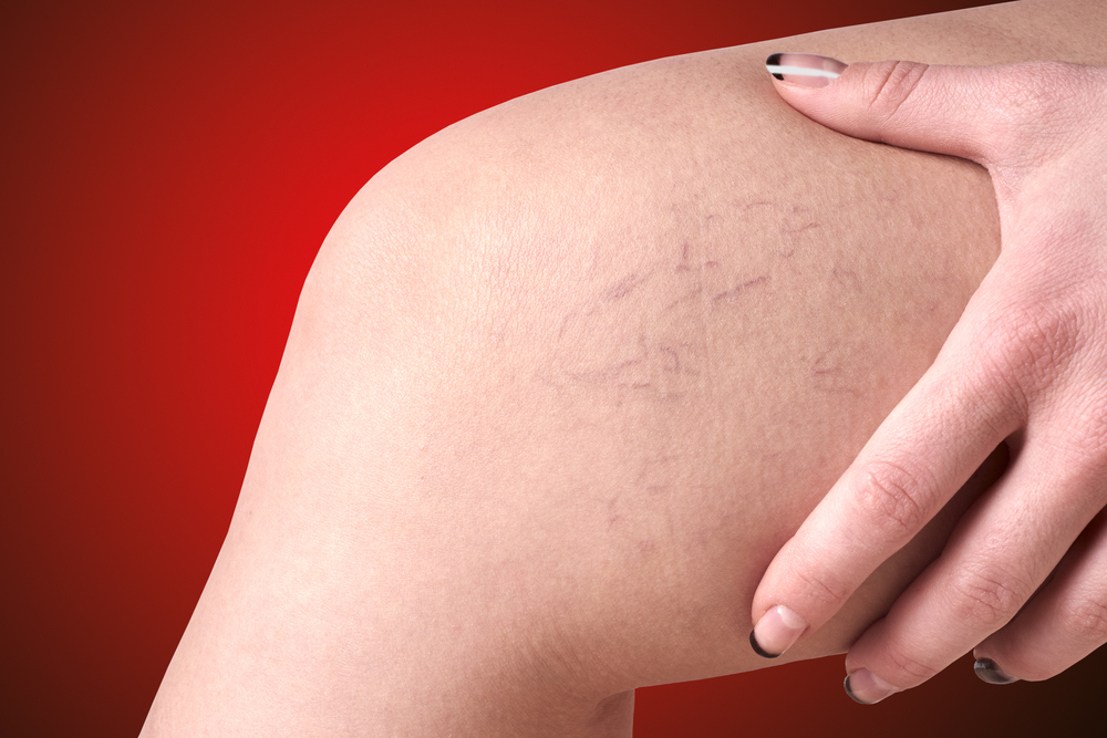 Treatment of varicose and spider veins in London