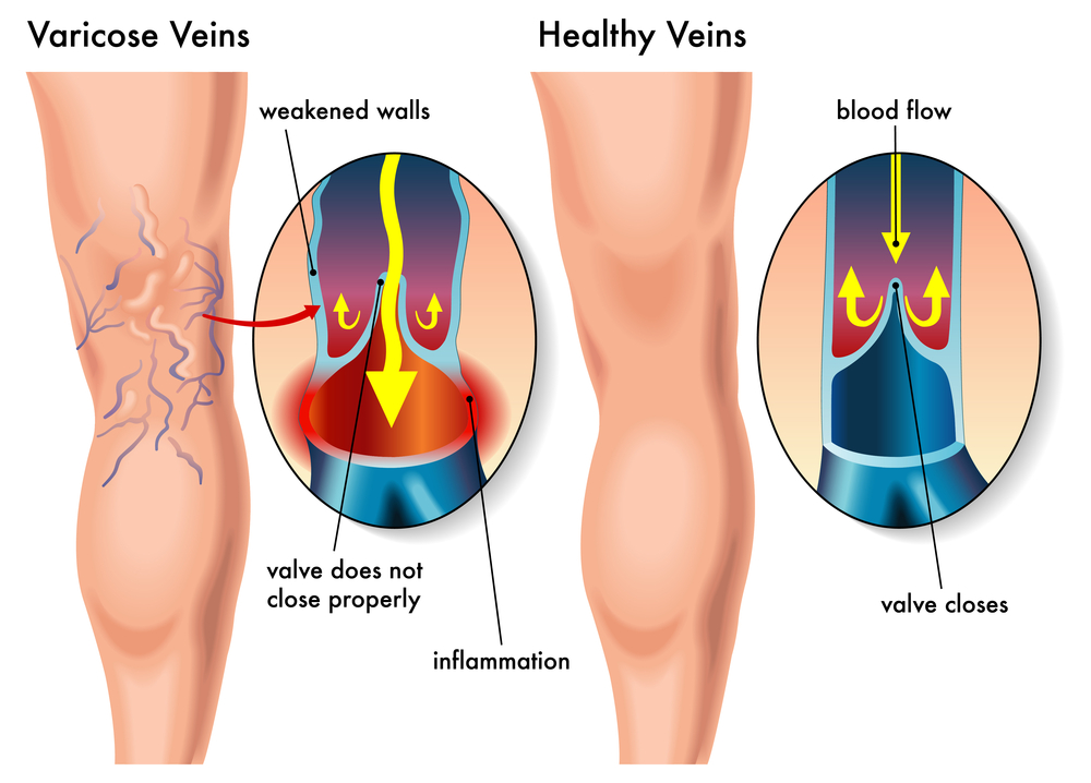 what is varicose veins?